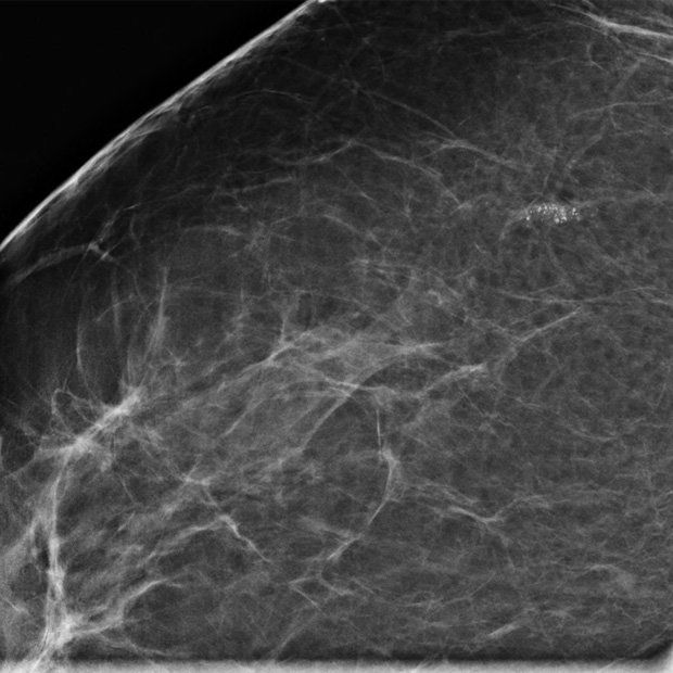 Slide Show Early Stage Breast Cancer Cancer Network