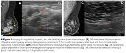 The Role of Postmastectomy Radiotherapy in Locally Advanced Breast Cancer After Pathological Complete Response to Neoadjuvant Chemotherapy