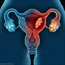 New, Non-Invasive Blood Test Could Assist in Early Detection of Endometrial Cancer