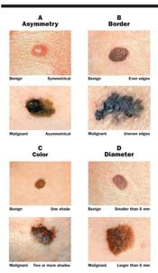 The Abcdes Of Moles And Melanomas Cancer Network
