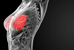 Neratinib Plus Fulvestrant Combination Does Not Meet Efficacy Criteria for Metastatic Breast Cancer