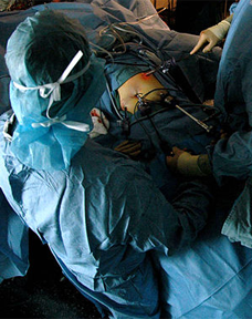 Study Supports Laparoscopic Surgery For Rectal Cancer