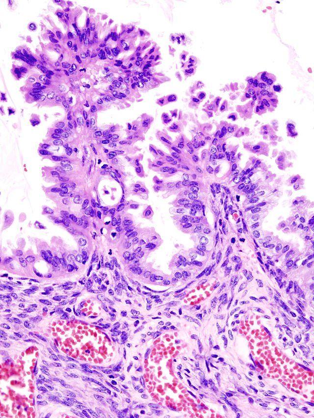Maintenance Pazopanib In Ovarian Cancer No Survival Benefit High Aes