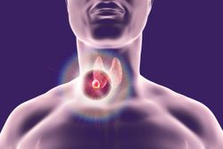 Study Identifies Effectiveness of RNA, DNA-RNA Tests for Diagnosis of Indeterminate Thyroid Nodules