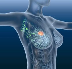 Certain RNA Expression Signatures Are Predictive of Outcomes for HER2+ Early Breast Cancer