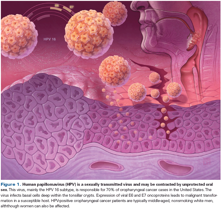 Hpv causes what std. Hpv warts breastfeeding