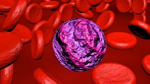 Game Changers in Treatment of Hematologic Malignancies