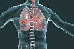 QUIZ: The ALEX Study for ALK+ Non-Small Cell Lung Cancer