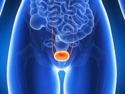 AstraZeneca Withdraws Durvalumab Indication for Previously Treated Locally Advanced or Metastatic Bladder Cancer