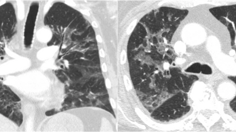 Pneumocystis jirovecii Pneumonia in Patients With Metastatic Prostate Cancer on Corticosteroids for Malignant Spinal Cord Compression: Two Case Reports and a Guideline Review