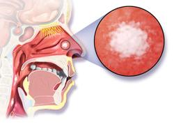 Gemcitabine Plus Cisplatin Provides Survival Benefit Over Fluorouracil Plus Cisplatin in Advanced Nasopharyngeal Carcinoma