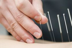 Jun J. Mao, MD, MSCE, on Next Steps in Acupuncture for Managing Pain in Cancer Survivors