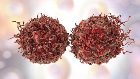 Experts Develop New Guideline for Advanced Prostate Cancer