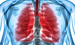 Investigators Look Past Standard Immunotherapy for Additional Lung Cancer Solutions