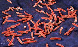 New Anti-Tuberculosis Regimen Cures 2 Months Earlier