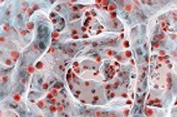 New Monoclonal Antibody Treatment Takes Aim at Bacterial Biofilms