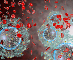 NAFLD Is Increasingly Affecting Patients With HIV