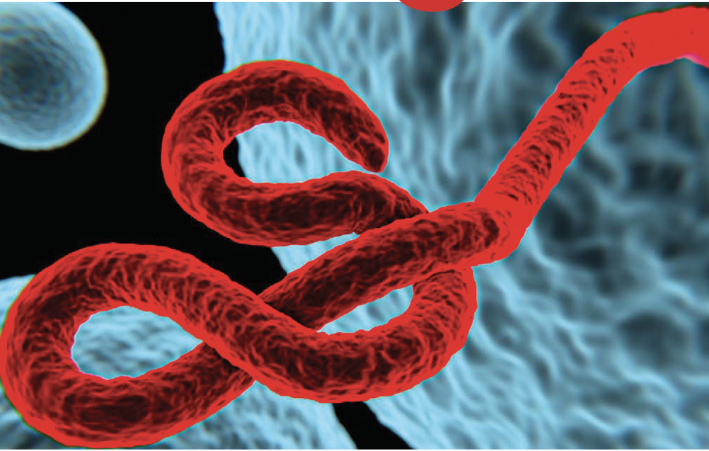 Delving Deeper into Post Ebola Syndrome