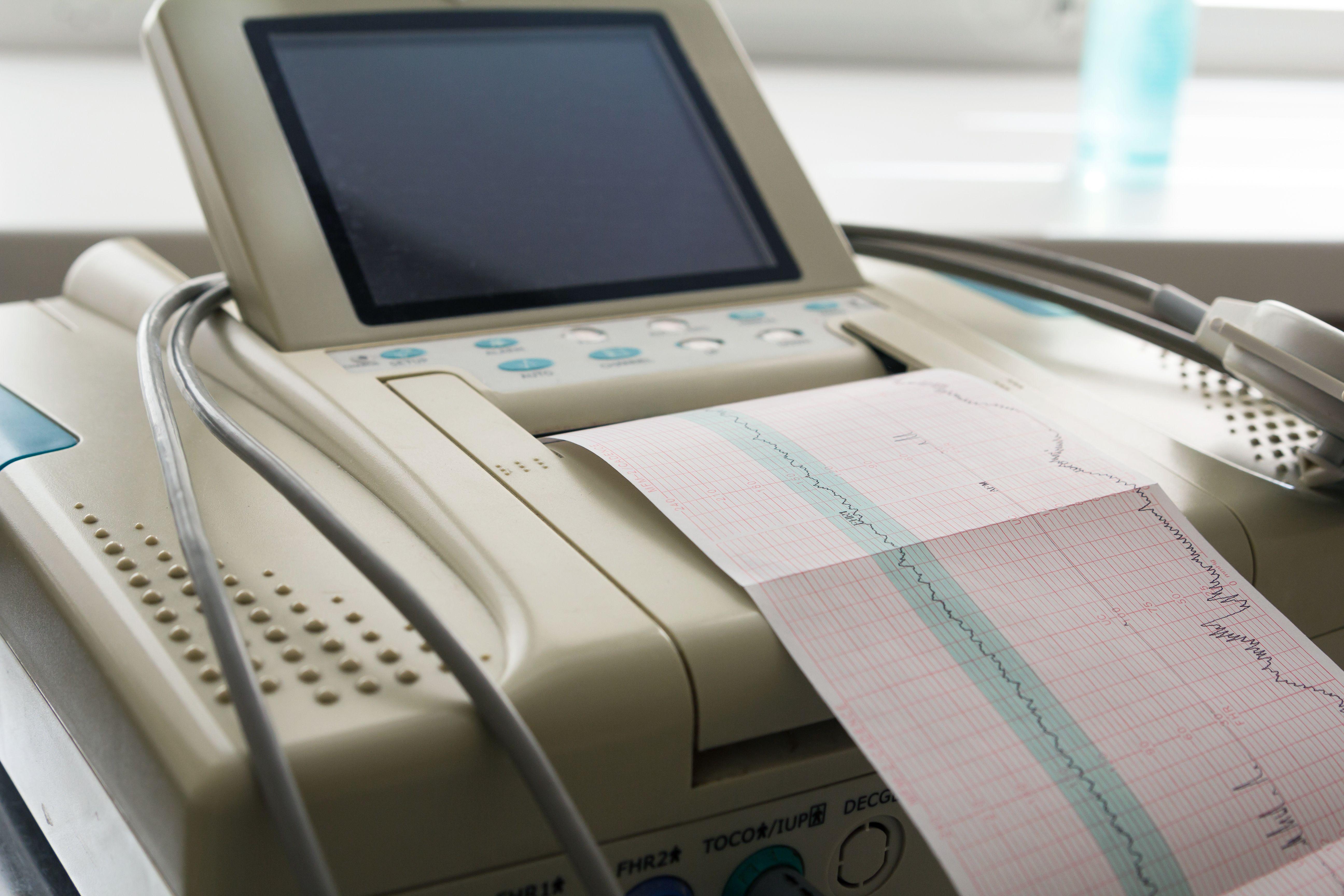 Fetal echocardiogram