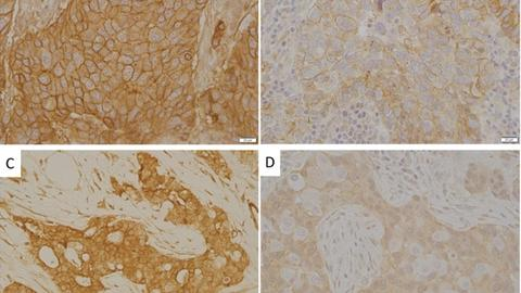 Insulin resistance contributes to racial disparities in breast cancer prognosis in US women