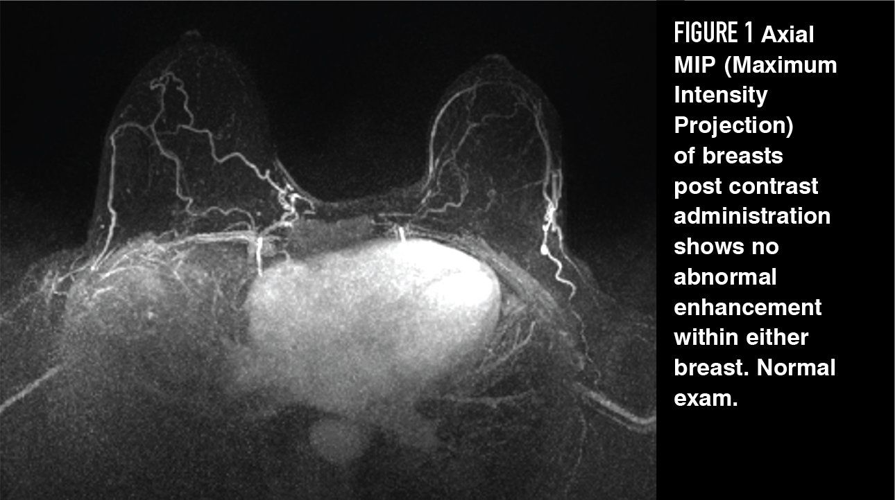 Gadolinium Based Contrast In Breast Mri What Ob Gyns Need To Know