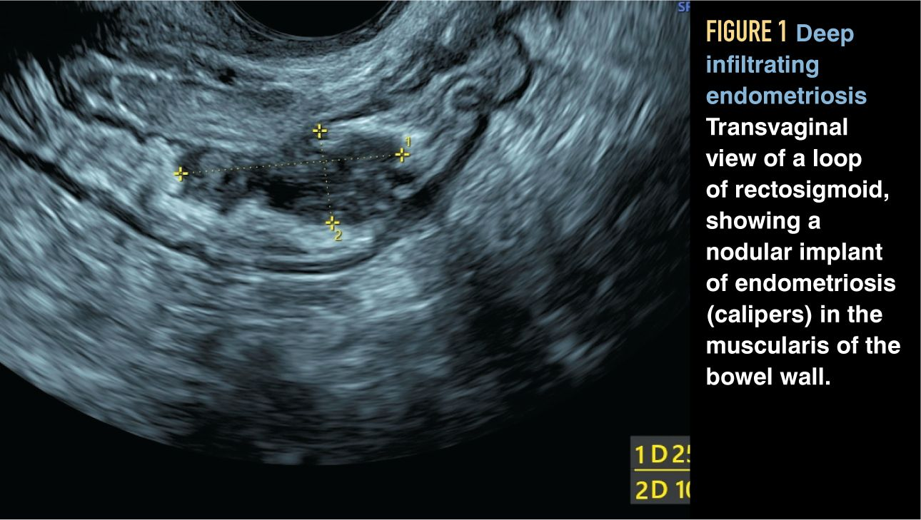 Gynecologic Ultrasound Primer How Not To Miss The Diagnosis Contemporary Ob Gyn
