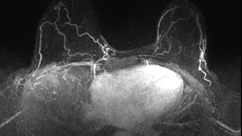 Gadolinium-based contrast in breast MRI: What ob/gyns need to know