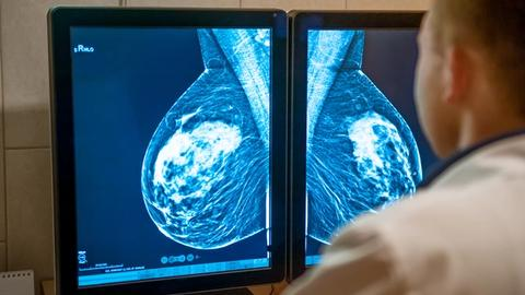 Does mammography have benefit for older women with chronic illnesses?