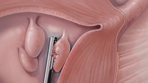 Endometrial polyps: In-office management