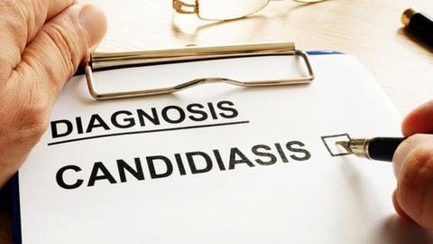 Microbiota composition, receptive oral sex may be risk factors for candidiasis