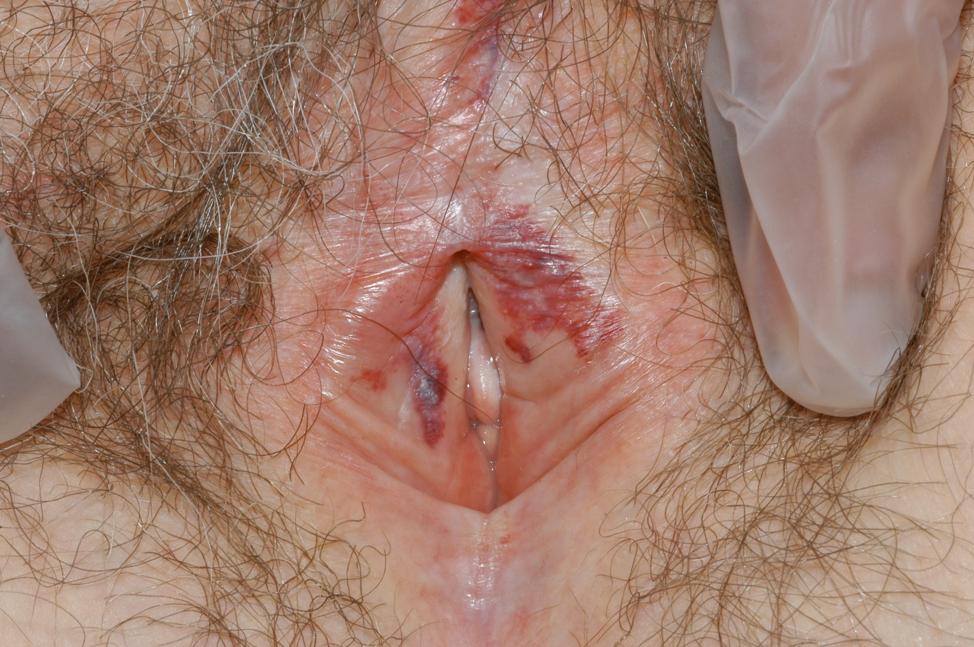 Vulvar lesions