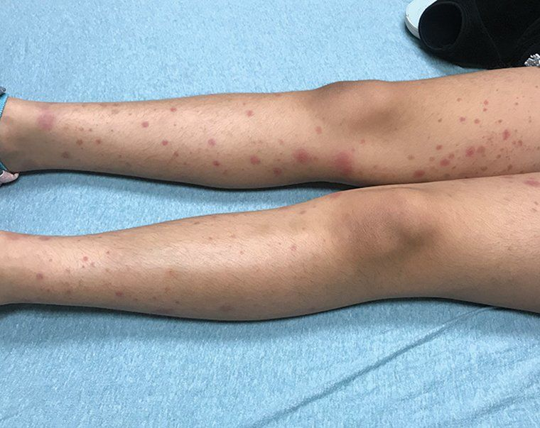 Rash Triggers Joint Pain In An 8 Year Old Girl Contemporary Pediatrics