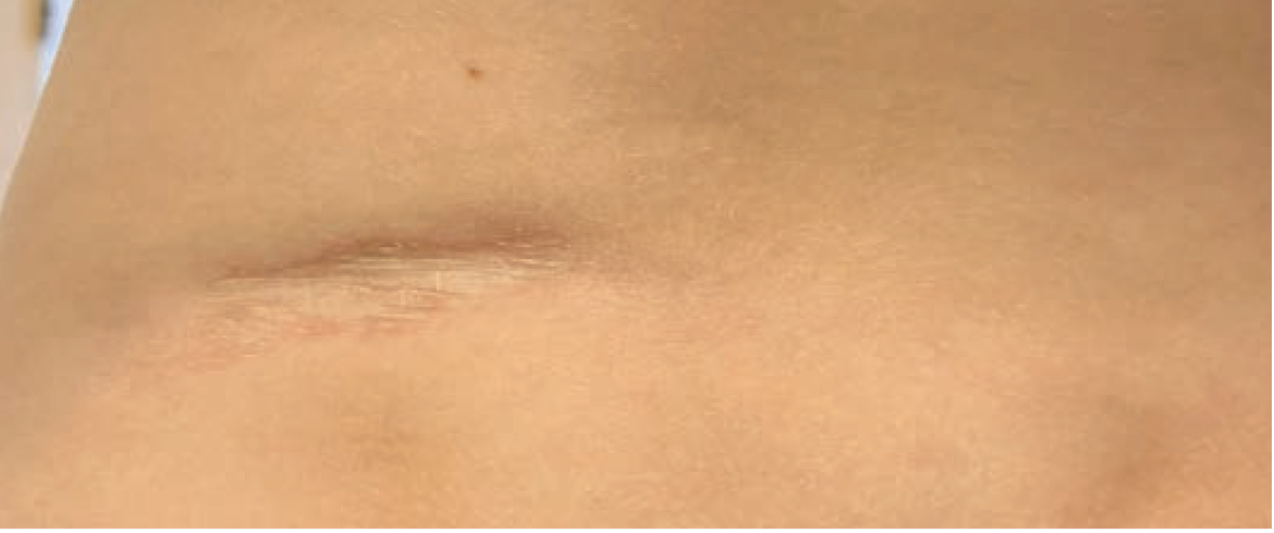 Progressive plaque in a 9-year-old boy