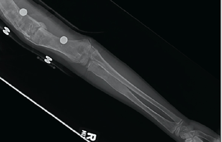 Child with a history of multiple fractures