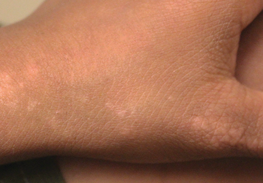 Linear papules appear on a boy's thumb, wrist