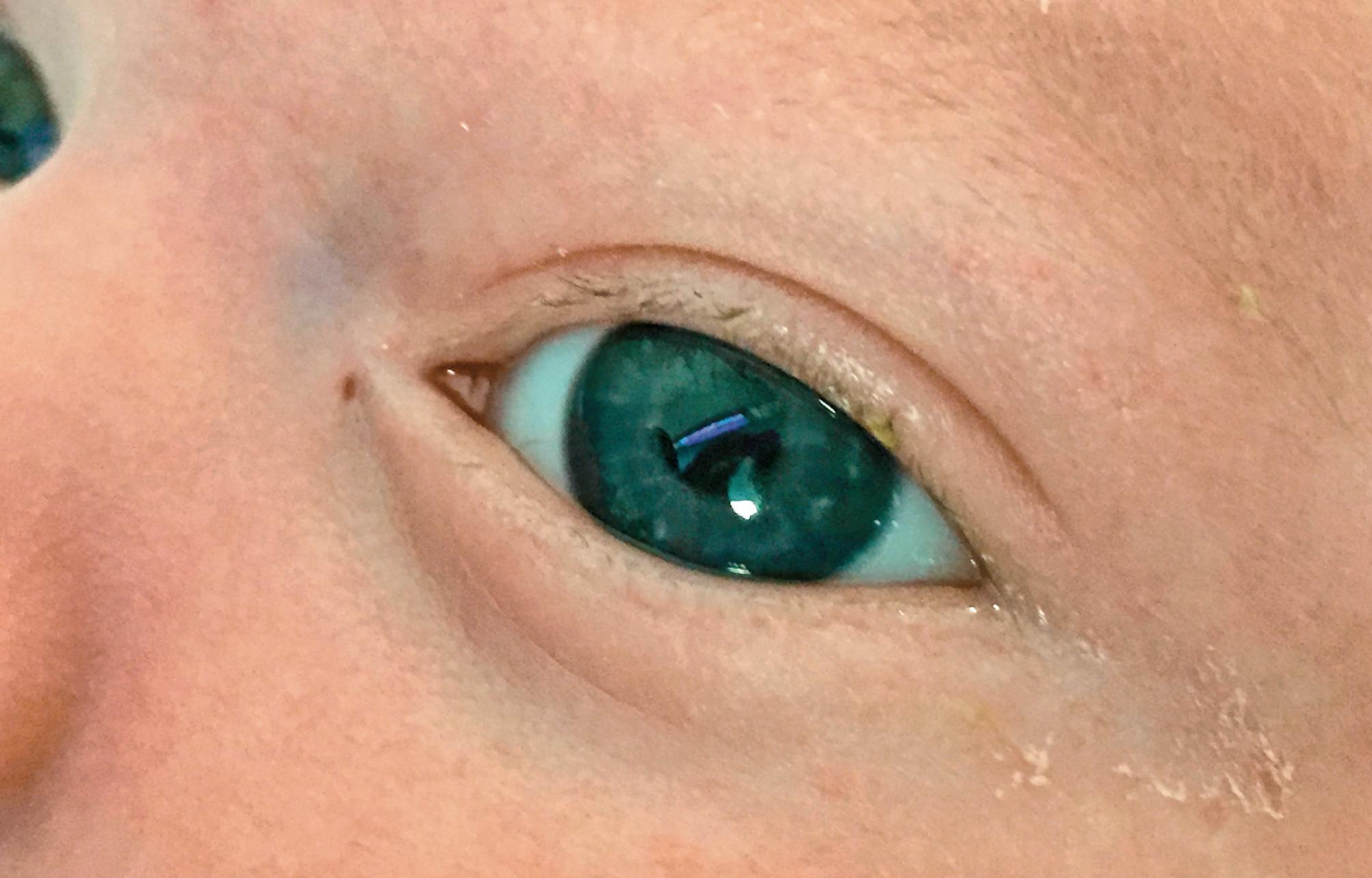 Fistula spied near infant's eye