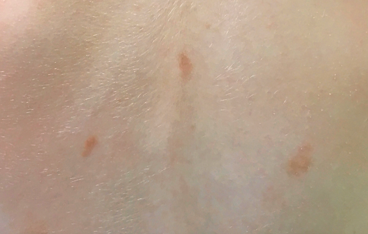 Fuzzy brown spots on a healthy 3-year-old