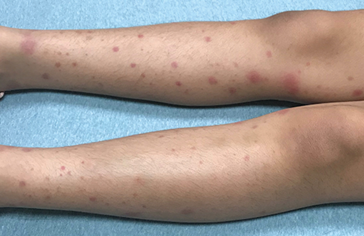 Rash triggers joint pain in an 8-year-old girl