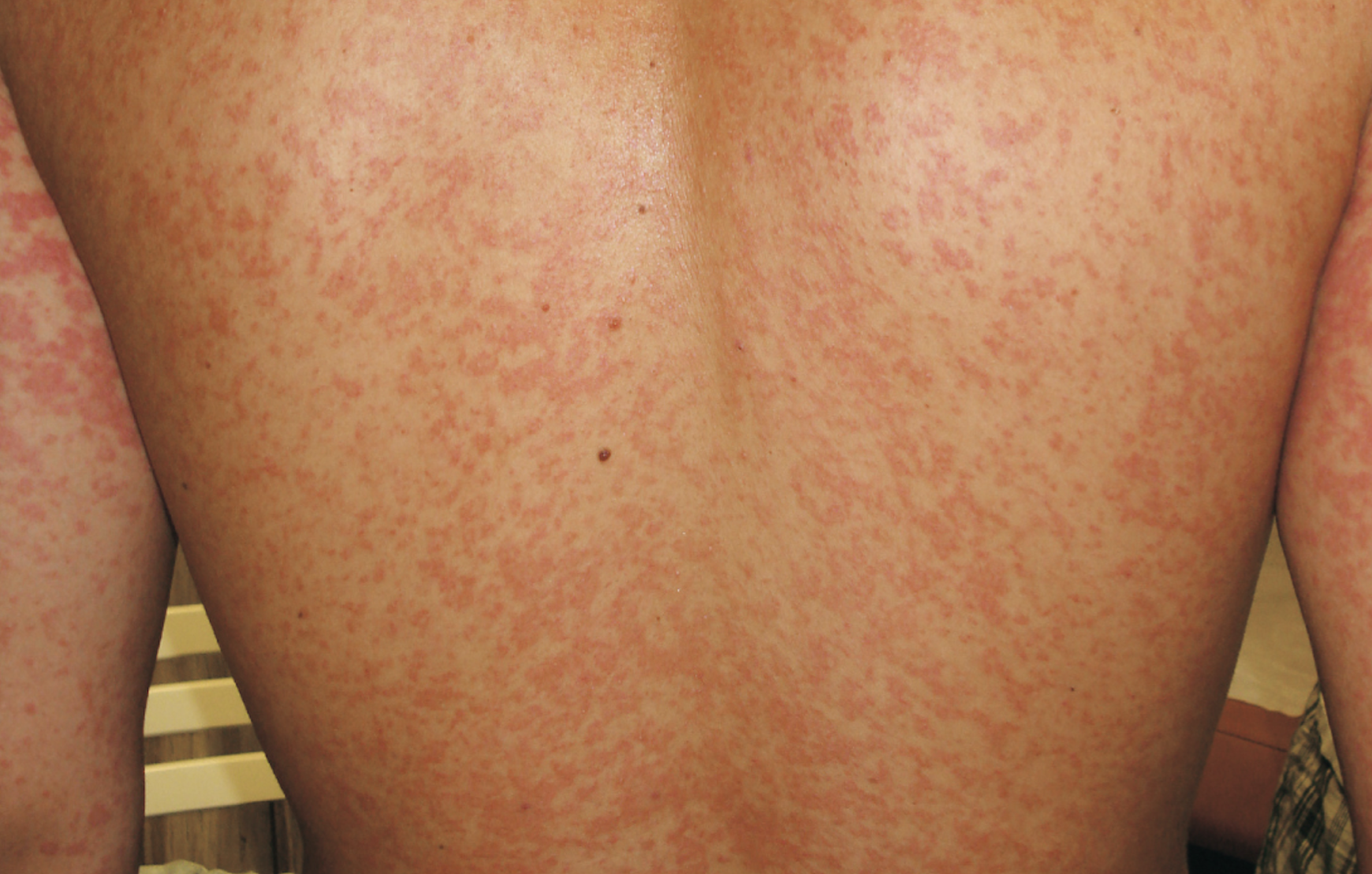 Teenager with sudden diffuse dermatitis
