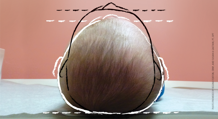 A pediatric epidemic: Deformational plagiocephaly/brachycephaly and congenital muscular torticollis