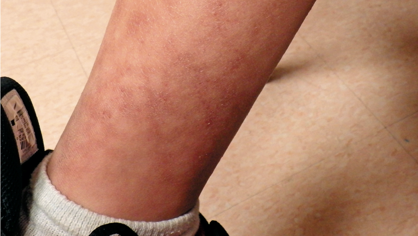 Reticulated rash on boy's lower extremities