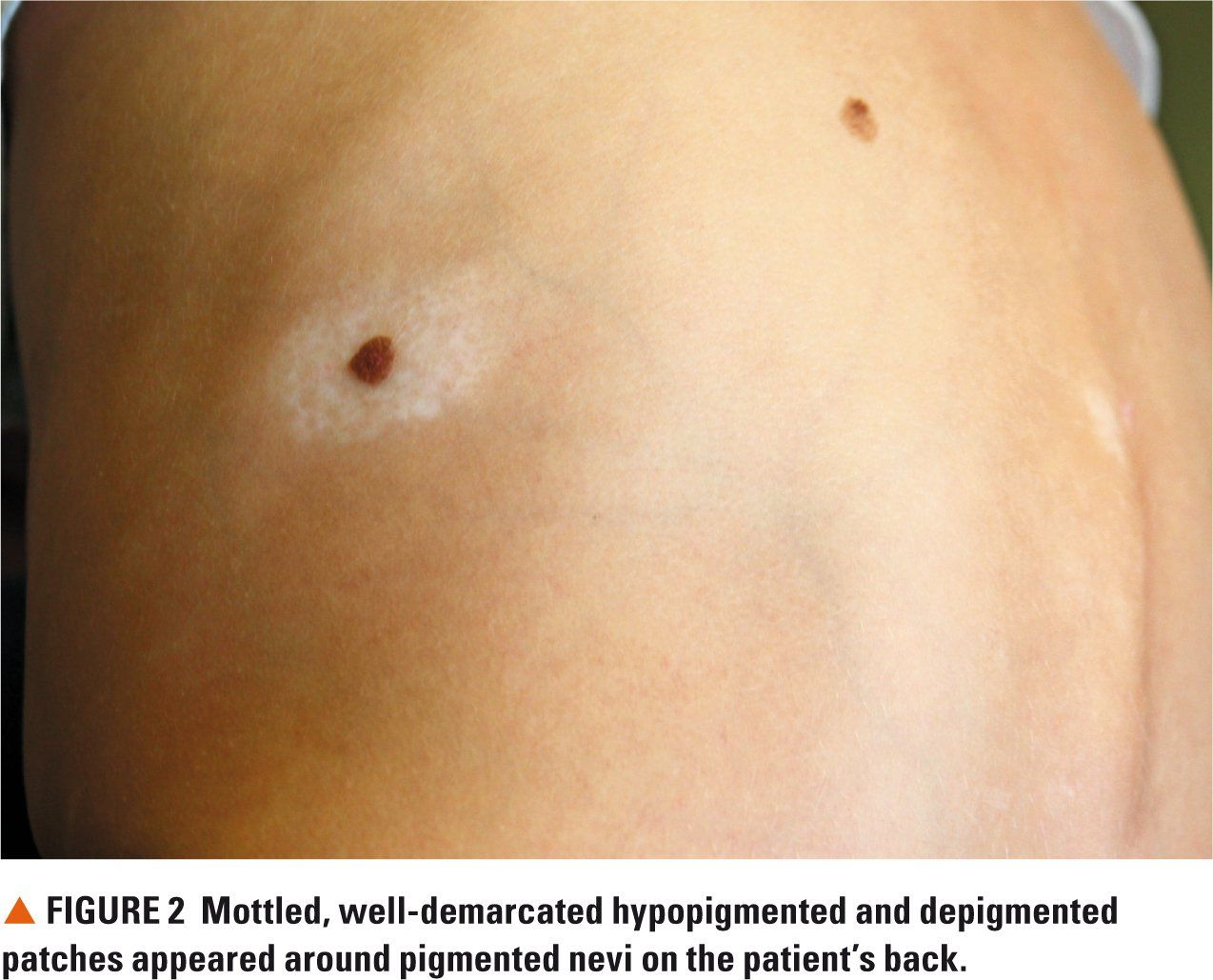 Boy S White Patches Signal Pigmentary Disorder