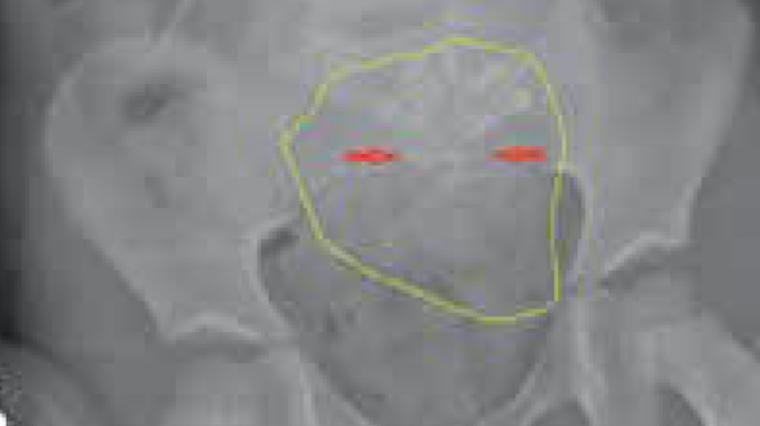 Left lower quadrant abdominal pain, vomiting