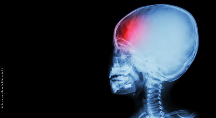 Pediatric migraine: Diagnostic criteria and treatment
