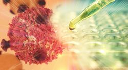 Bavencio May Be Effective in Preventing Relapse in Women With Gestational Trophoblastic Tumors