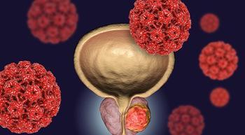 Zytiga and Prednisone Plus Erleada Reduces Risk of Disease Progression in Prostate Cancer Subtype