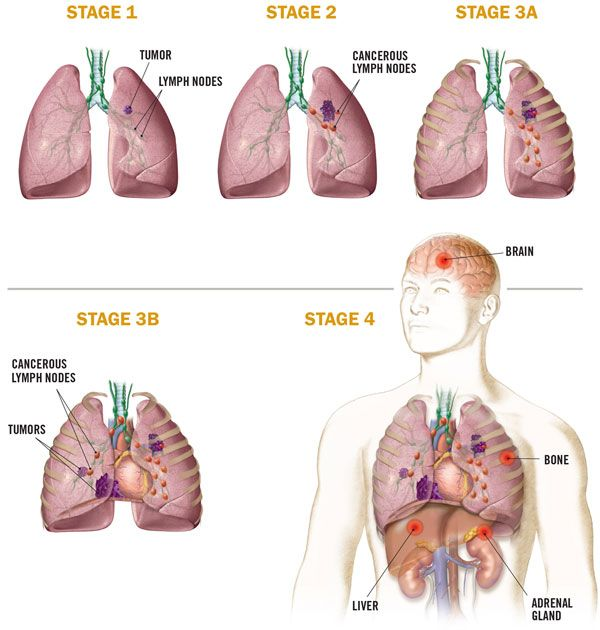 Medical Illustration Non Small Cell Lung Cancer Cure Today