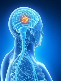 Cancer Type May Help Predict Where Brain Metastases Will Occur