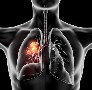 Aumolertinib Improves Survival in Advanced Non-Small Cell Lung Cancer