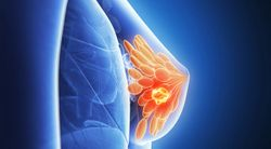 Tesetaxel with Reduced Dose of Xeloda Improves Progression-Free Survival in Breast Cancer